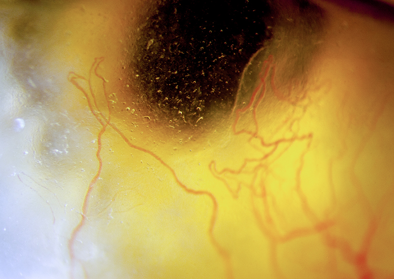 Slit=lamp photo of cornea, back-lit from iris