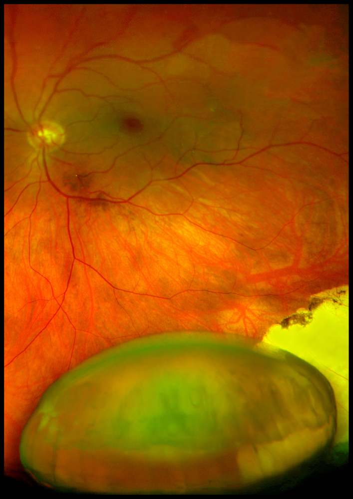 Wide-angle Optom image showing retina and dislocated lens