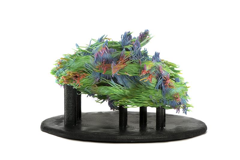 3D printing of fantastic human brain scans | CUH Media